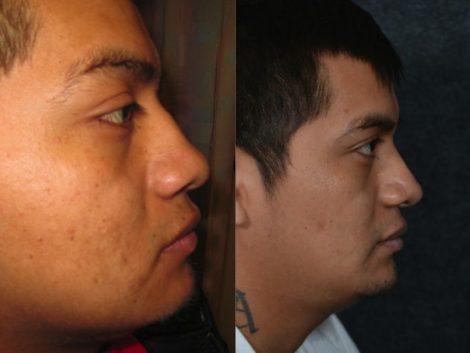 Rhinoplasty - Left Side
