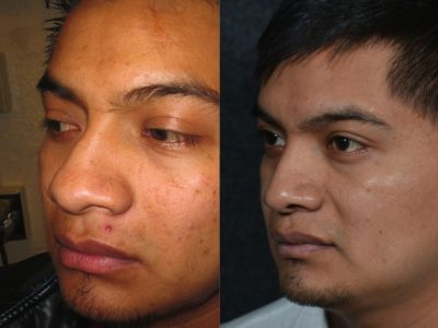 Rhinoplasty - Left Side