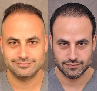 Dr. Ben Talei himself at the 8 months post-op mark
