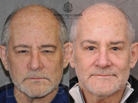 Brow & Eyelid Ptosis Repair with Lower Eyelid Rejuvenation - Front