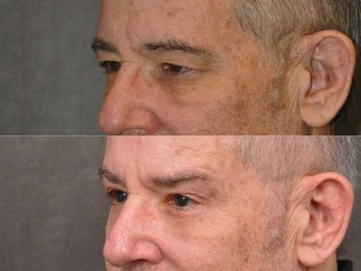 Brow & Eyelid Ptosis Repair with Lower Eyelid Rejuvenation - Left Side