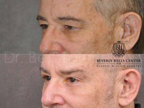 Brow & Eyelid Ptosis Repair with Lower Eyelid Rejuvenation - Left Side