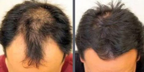 Hair Transplant with NeoGraft.
