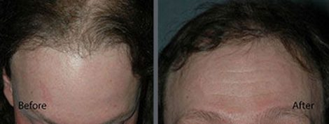 Hair Transplant using the thin strip method.