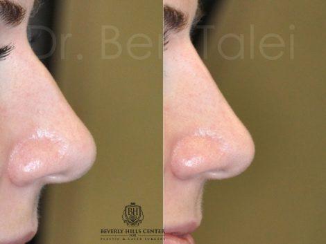 Non Surgical, Liquid Rhinoplasty / Nosejob