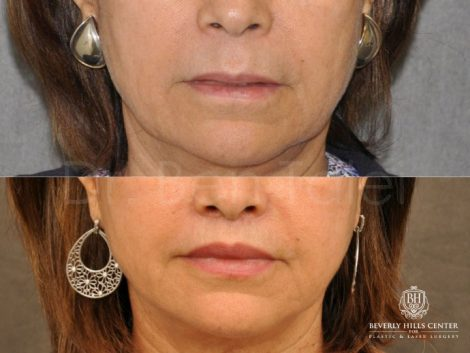 Modified Upper Lip Lift for Accent and Symmetry - Front