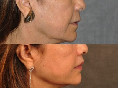 Modified Upper Lip Lift for Accent and Symmetry - Right Side