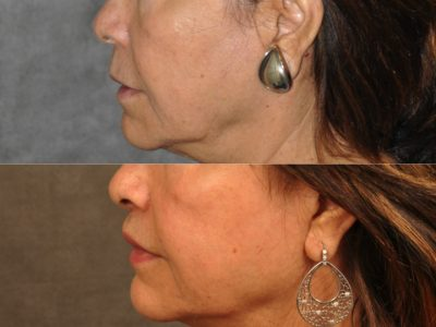 Modified Upper Lip Lift for Accent and Symmetry - Left Side
