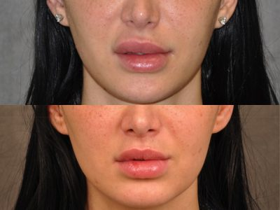 Modified Upper Lip Lift to Correct Over-Filling and Asymmetry - Front