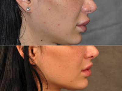 Modified Upper Lip Lift to Correct Over-Filling and Asymmetry - Right Side