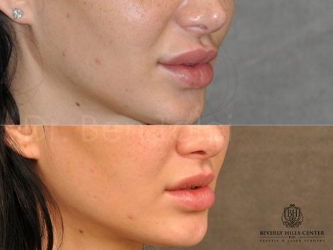 Modified Upper Lip Lift to Correct Over-Filling and Asymmetry - Left Side