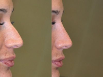 Non Surgical Rhinoplasty / Nosejob