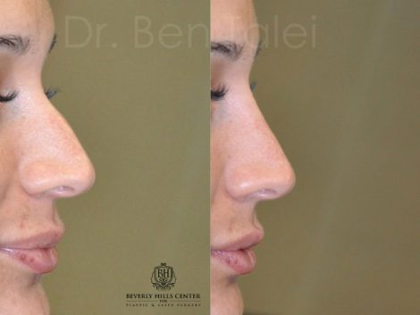 Non Surgical Rhinoplasty / Nosejob