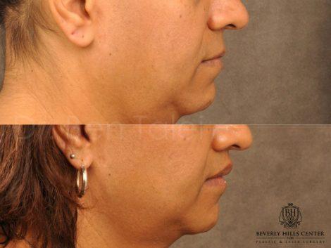Modified Upper Lip Lift for feminization – Right Side