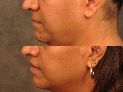 Modified Upper Lip Lift for feminization – Left Side
