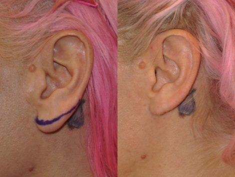 Ear Lobe Reduction