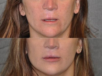 Modified Upper Lip Lift to revise cleft lip scarring - Front