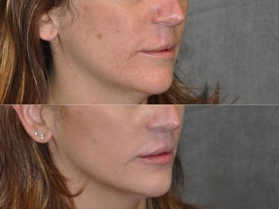Modified Upper Lip Lift to revise cleft lip scarring - Right Side