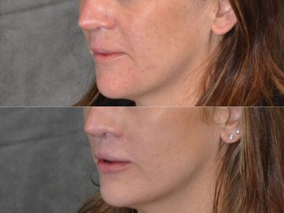 Modified Upper Lip Lift to revise cleft lip scarring - Left Side
