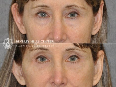 Upper and Lower Eyelid Lift using Fat Transposition - Front