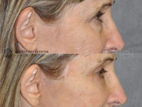 Upper and Lower Eyelid Lift using Fat Transposition - Right Side