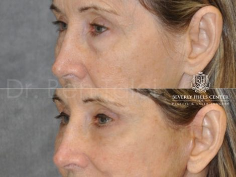 Upper and Lower Eyelid Lift using Fat Transposition - Left Side