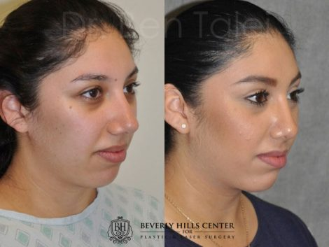 Minimally Invasive / Closed Rhinoplasty & Nostril Lightening - Right Side