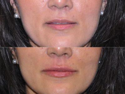Natural Lip Filler