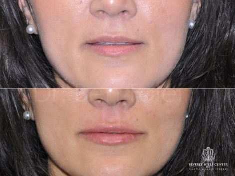 Natural Lip Filler