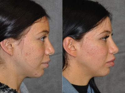 Modified Upper Lip Lift – Right Side