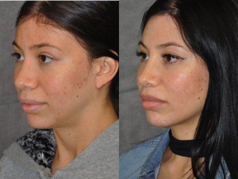 Modified Upper Lip Lift – Left Side
