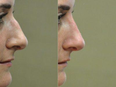 Non Surgical Rhinoplasty / Liquid Nosejob – Right Side