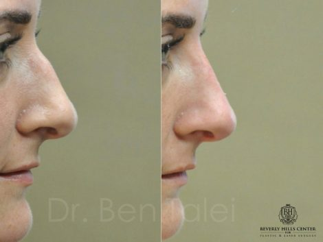 Non Surgical Rhinoplasty / Liquid Nosejob – Right Side