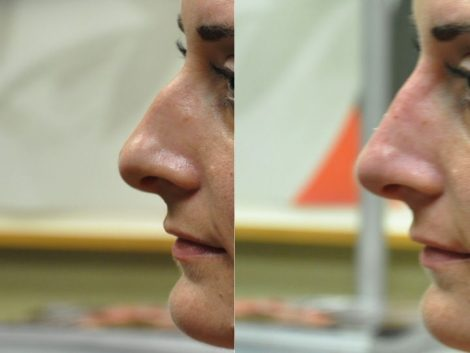Non Surgical Rhinoplasty / Liquid Nosejob – Left Side