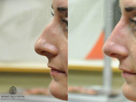 Non Surgical Rhinoplasty / Liquid Nosejoba - Left Side