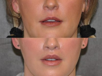 Upper Lip Lift Revision and Lower Lip V-Y Augmentation - Front