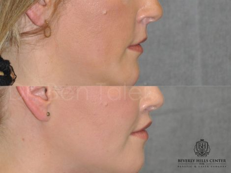 Upper Lip Lift Revision and Lower Lip V-Y Augmentation - Right Side