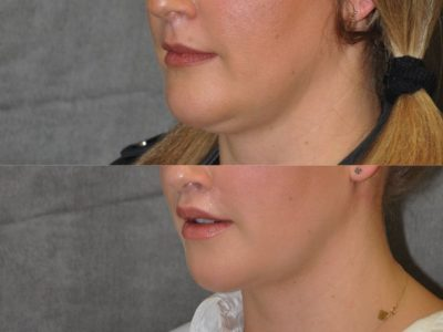 Upper Lip Lift Revision and Lower Lip V-Y Augmentation - Left Side