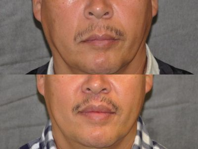 Modified Upper Lip Lift for Men - Front
