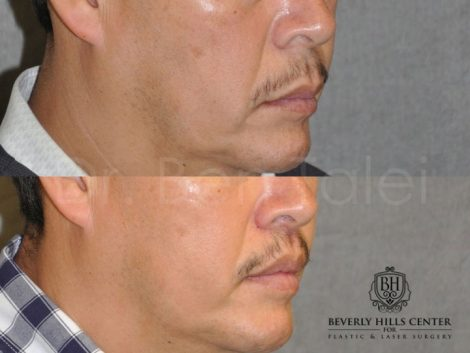 Modified Upper Lip Lift for Men - Right Side