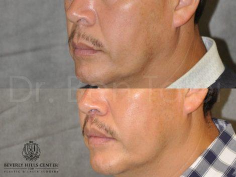 Modified Upper Lip Lift for Men