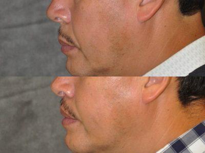 Modified Upper Lip Lift for Men - Left Side