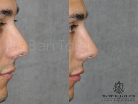 Non Surgical Rhinoplasty and Lip Filler - Right Side