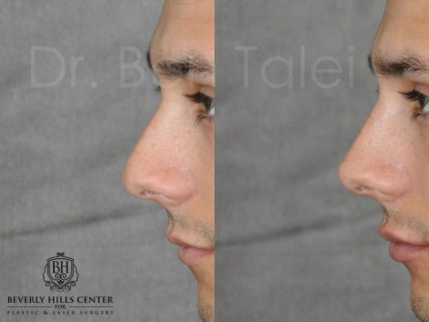 Non Surgical Rhinoplasty and Lip Filler - Left Side