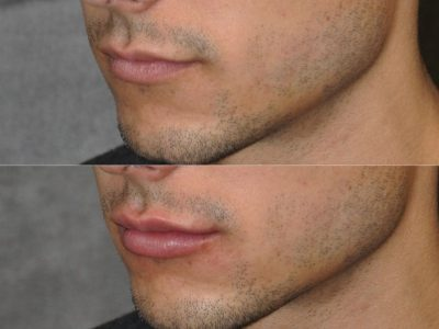 Lip Lift - Left Side