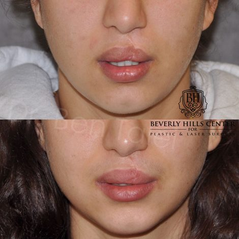 Cleft Lip Revision