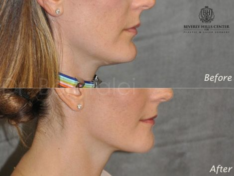 Internal Chin Reduction - Right Side
