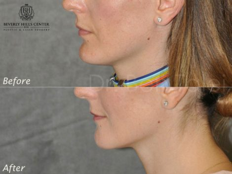 Internal Chin Reduction - Left Side