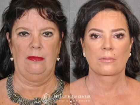 Kris Jenner's Sister – Karen Houghton - AuraLyft with Brow & Eyelid Rejuvenation - Front