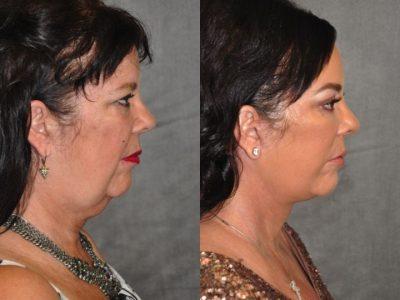 Kris Jenner's Sister – Karen Houghton - AuraLyft with Brow & Eyelid Rejuvenation  - Right Side